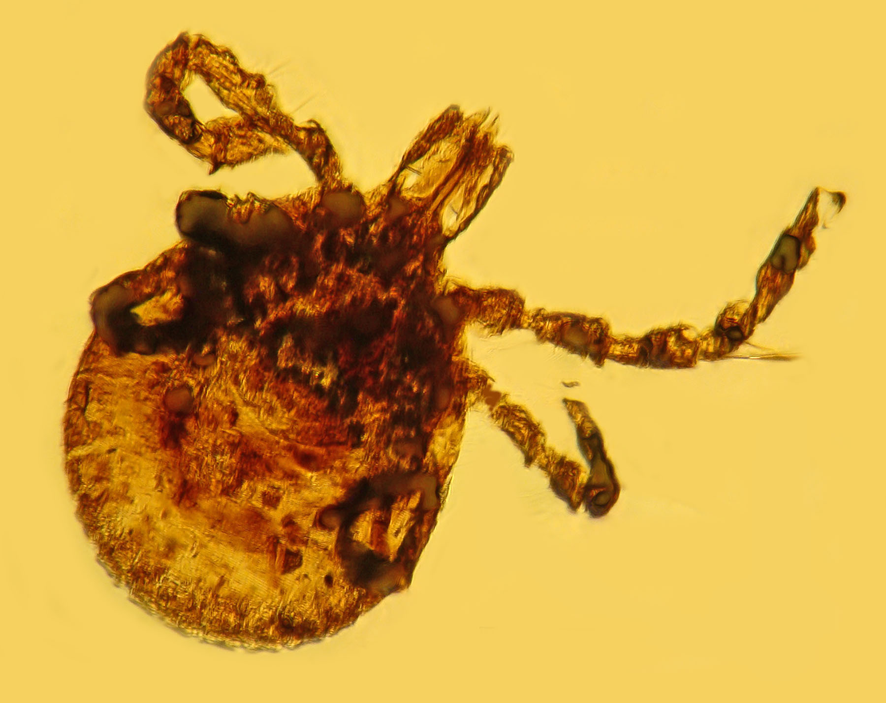 A tick preserved in prehistoric amber. They've been around a long time, and they're not going anywhere. (Photo/George Poinar Jr., Oregon State University)